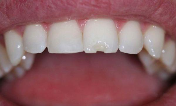 Dán sứ Veneer thích hợp để cải thiện tình trạng răng miệng của bạn